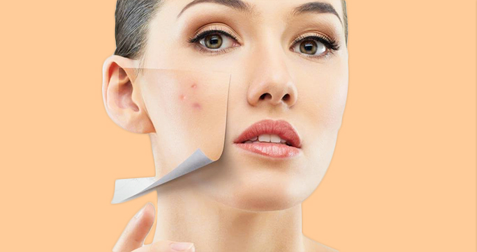 Sun Damage Can Ruin Your Skin And Might Also Result In Pigmentation